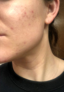 after photo of light therapy treatment