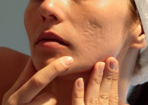 Woman examining her skin close up