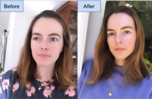 caroline green tea skincare experiment before and after pics