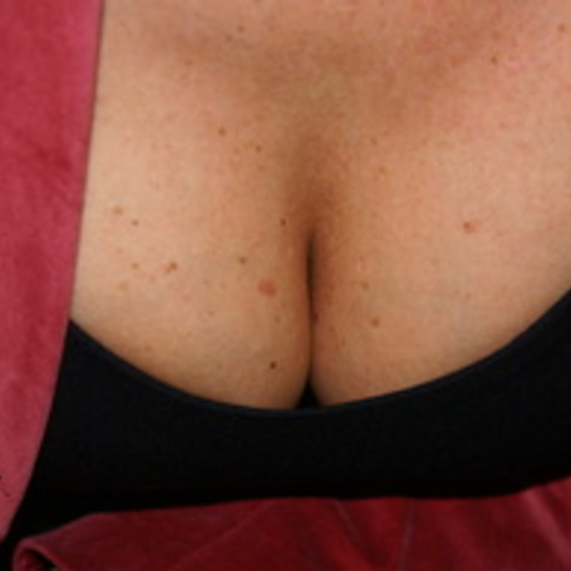 Keep Your Breasts Happy with Breathability