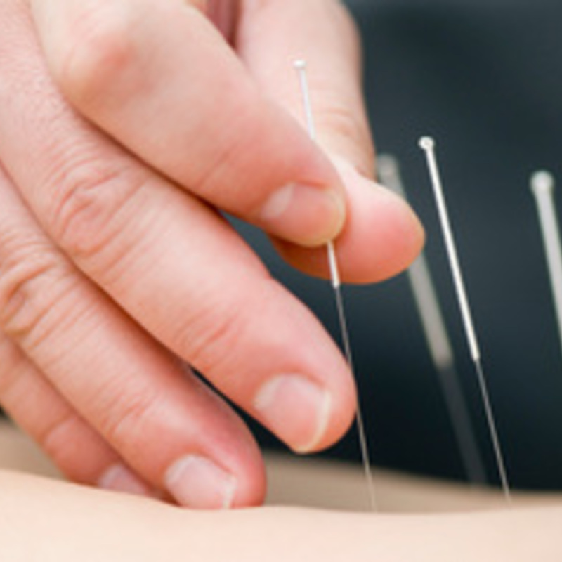 Trying Acupuncture: Fertile Thoughts