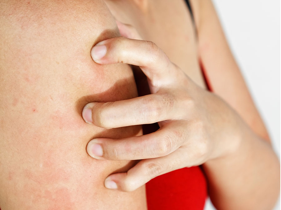 What Are Those Bumps on My Arms? A Rough Guide to KP