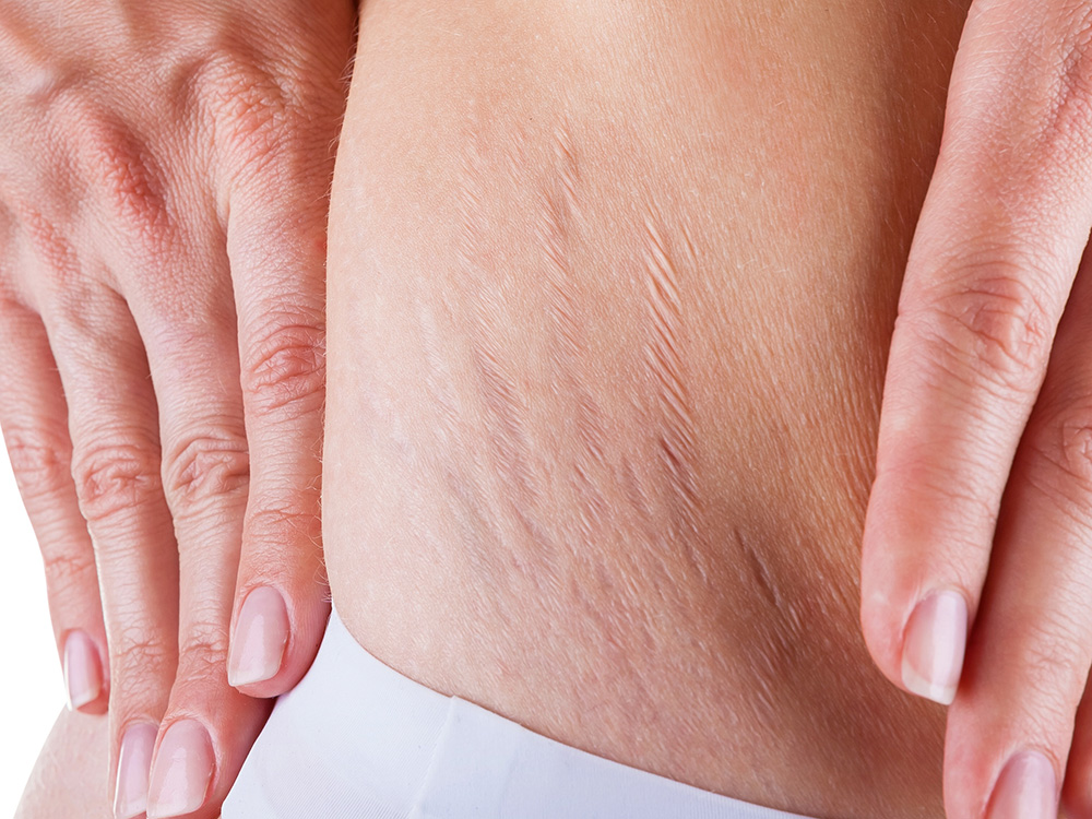 More Than Skin Deep: Do Stretch Marks Ever Go Away?