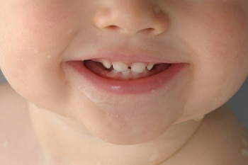Healthy Smiles for Kids