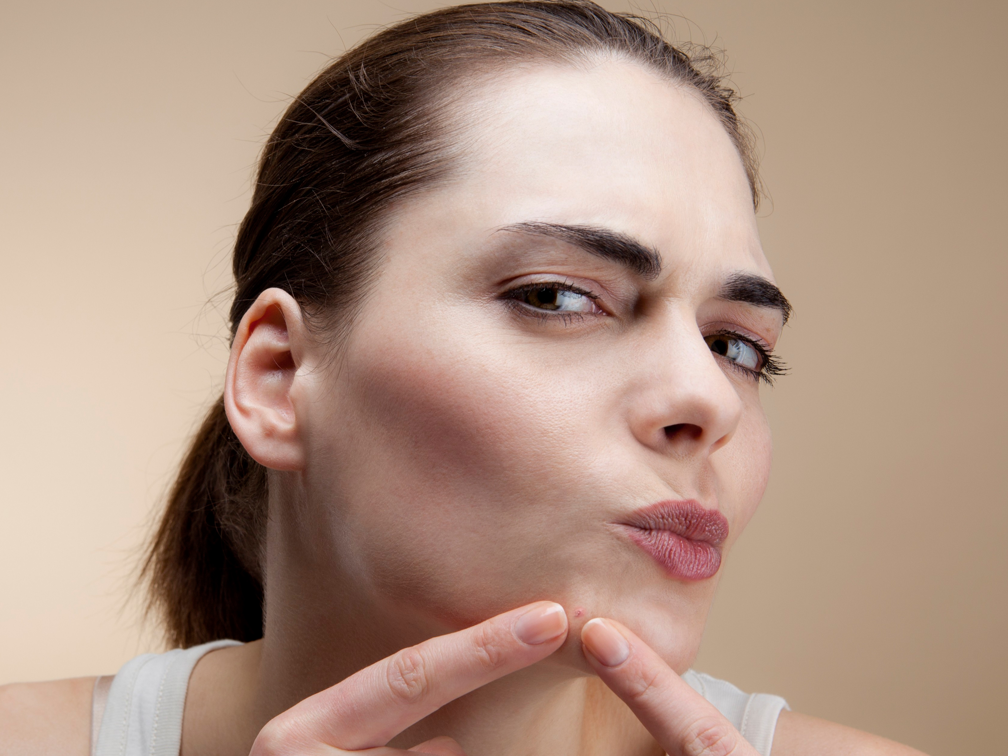 Asking for a Friend: Is Pimple Popping Really So Bad?